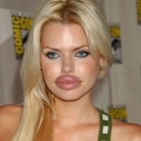 ABS employment in detail: Botox boom rolls on