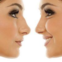 SloMo cancels your nose job