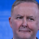 Albo cashes investment property as negative gearing reform scrapped